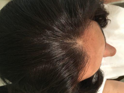 lissage brésilien enzymothérapie _Résultats visibles_Expressionsdenfants
